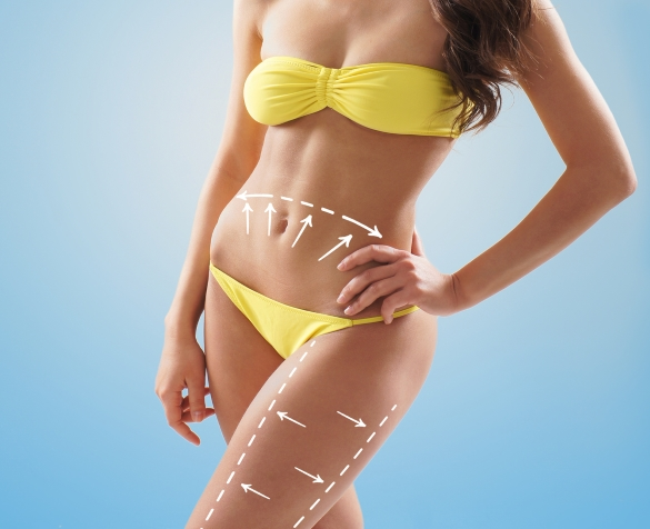 Cellulite removal For Every Womens Quest