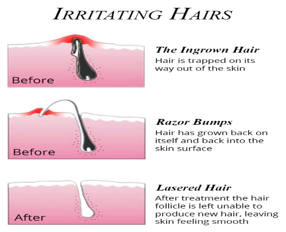 Ingrown-Hair-Infographic