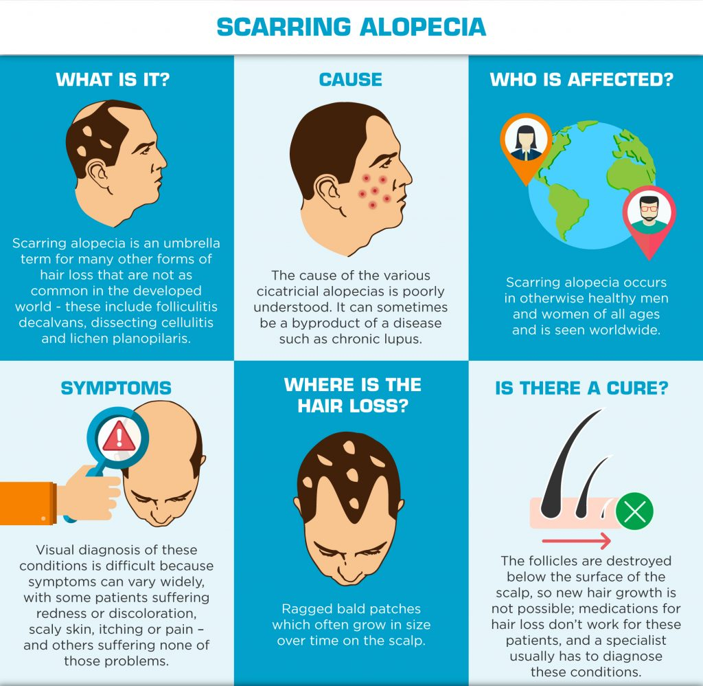 Understanding Hair Loss in Men - Scarring Alopecia
