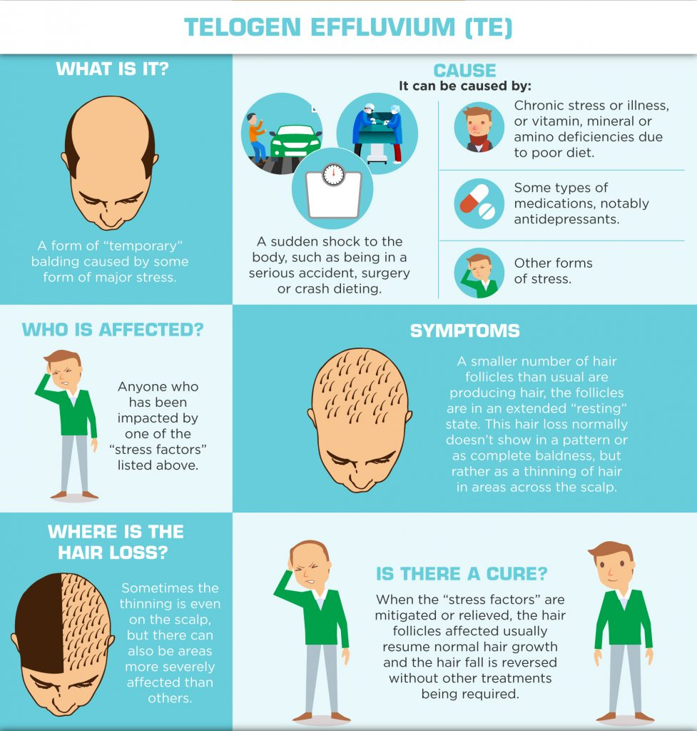 Understanding Hair Loss in Men - Telogen Effluvium - TE