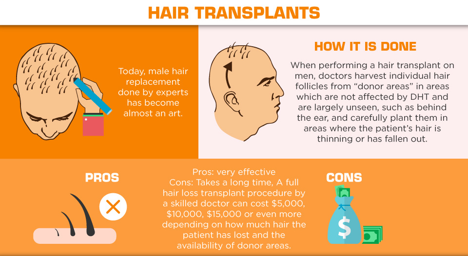 Understanding Hair Loss in Men - hair transplants