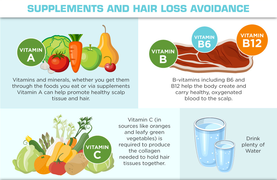 Understanding Hair Loss in Men - supplements and hair loss avoidance