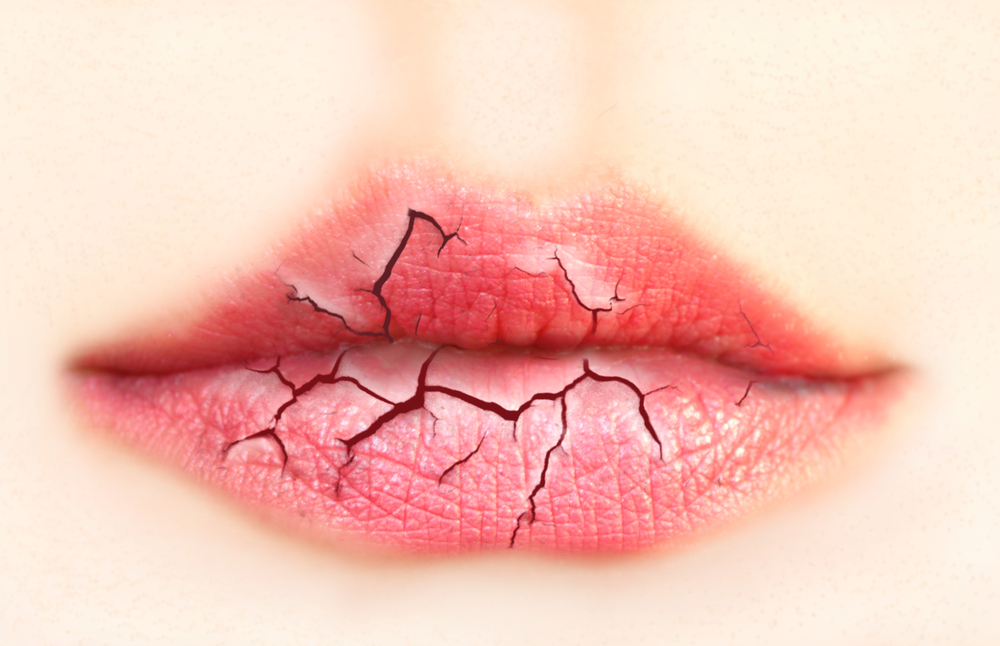Cracked and dry lips