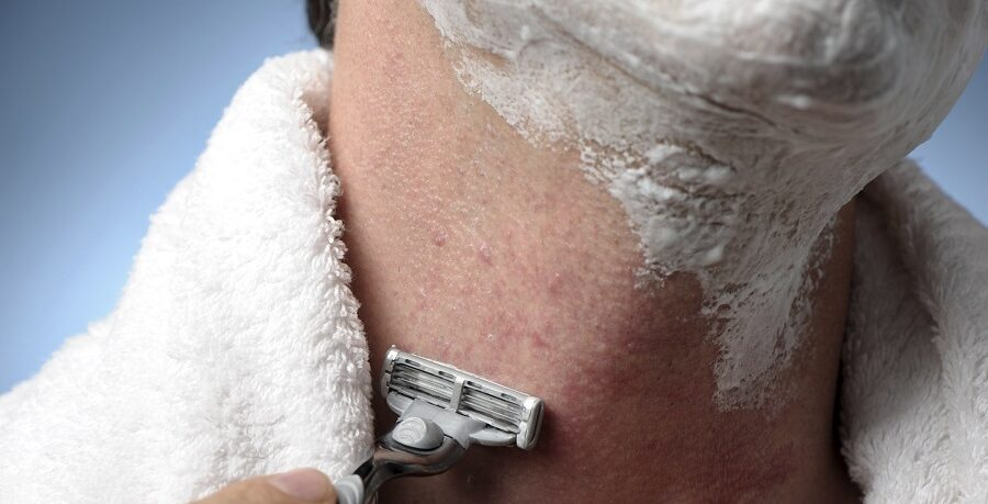 How To Get Rid Of Razor Bumps - A Complete Guide