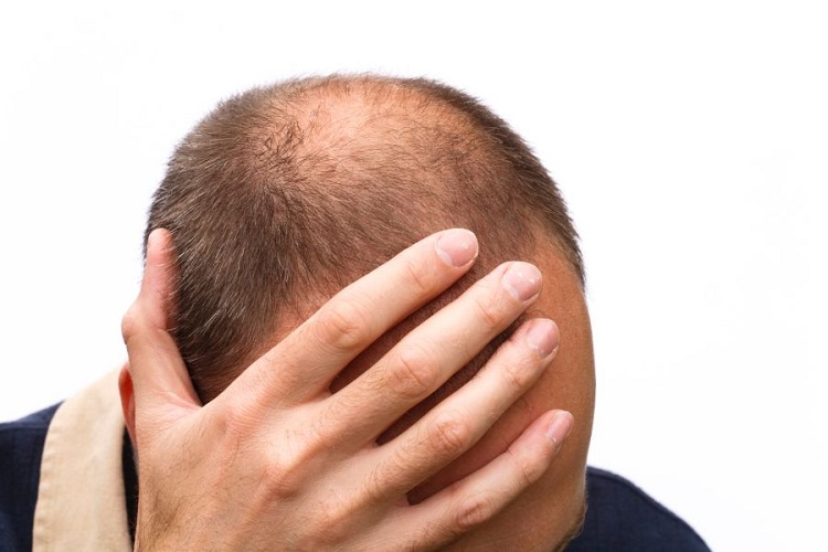 What are some of the reasons for hair loss or balding in men?