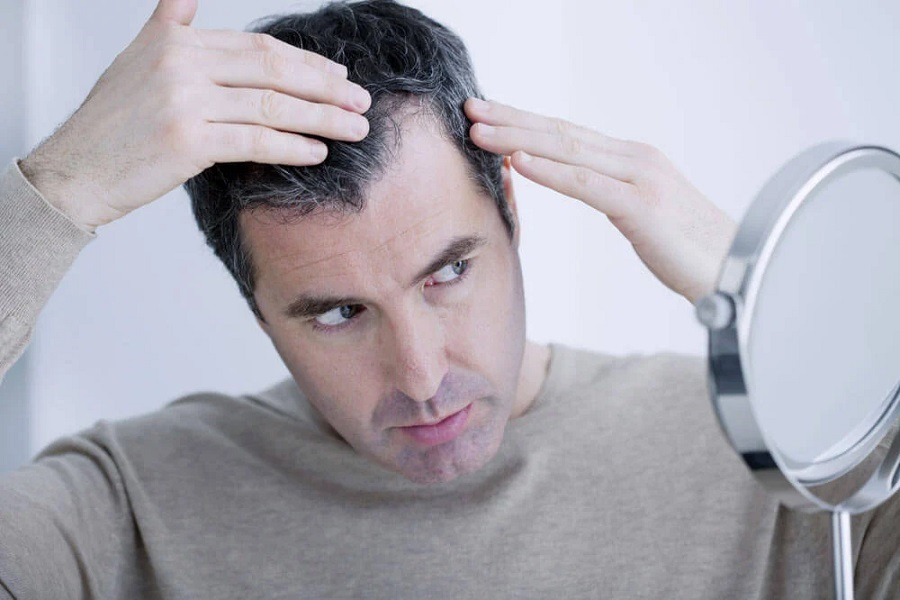 8 Early Signs Of Balding in Men