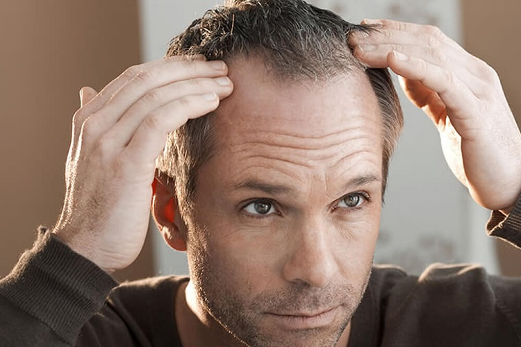 8 early balding signs that need to be seen